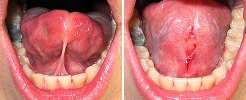 Frenectomy