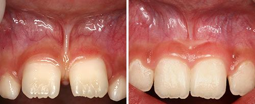 Frenectomy Treatment