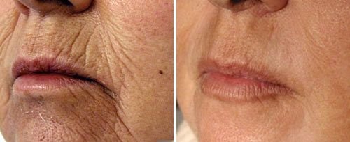 Perioral Resurfacing Treatment