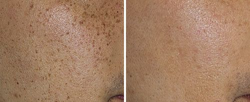 Pigmented Lesions Treatment