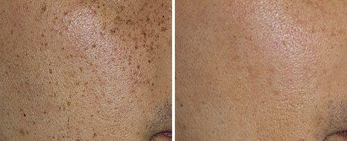 Medicals International - Dermatology & Aesthetics - Fotona