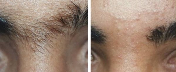 Dr wan and dr fahrina skin centre for Eyebrows tattoo removal laser
