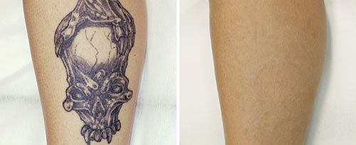 How Much Does Tattoo Removal Cream Cost