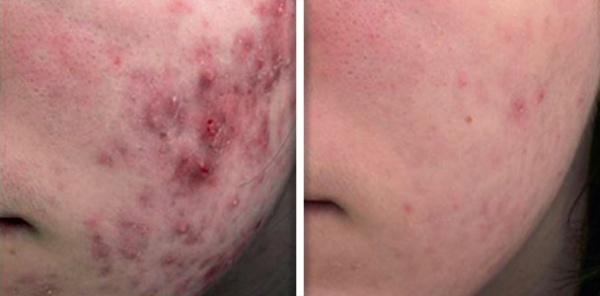 Treatment of active acne