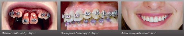 Dental Trauma Treatment
