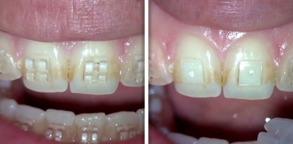 Orthodontic bracket removal