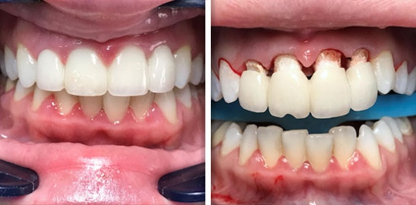 Ceramic veneer bridge removal