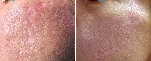 Scar revision fotona acne scars treatment sciox Choice Image