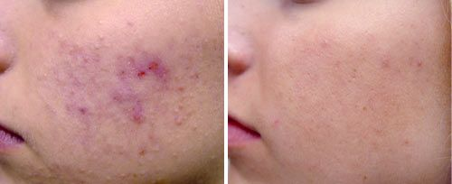Active Acne Treatment