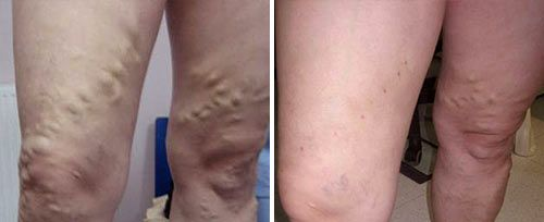 Endovenous Laser Therapy