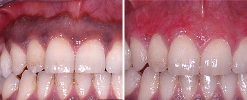 Gum Pigmentation Removal