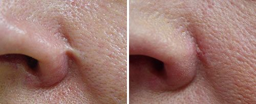 Nasal Scar Treatment