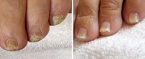 Onychomycosis Treatment