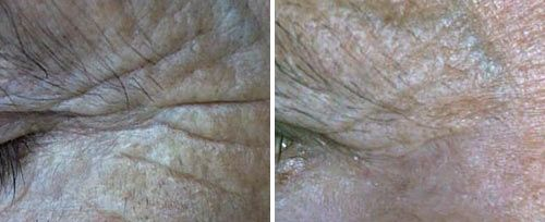 Periocular Resurfacing Treatment