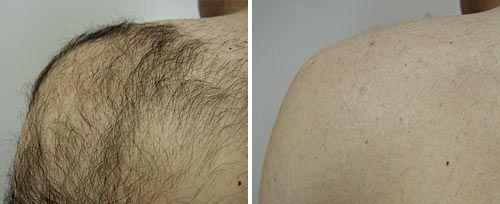 Fotona Hair Removal